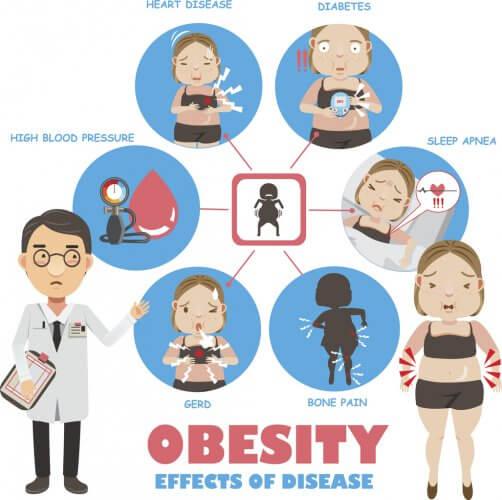肥満と睡眠時無呼吸・高血圧などの合併症