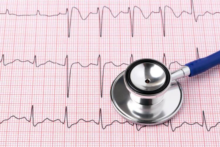 心電図による不整脈の診断