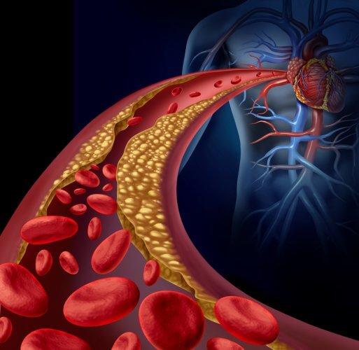 狭心症と心筋梗塞の発症メカニズム