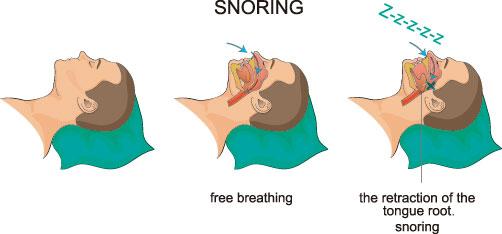 いびき を 止める 方法
